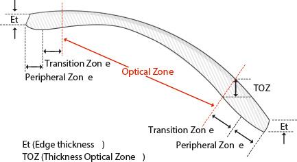 Optician schema picture
